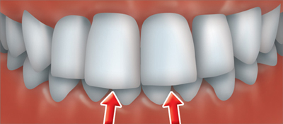 Denture Teeth Sizes http://www.cda-adc.ca/en/oral_health/procedures/orthodontics/
