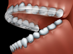 Informations orthodontie troubles douleurs atm machoire visage