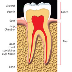 Image: Root Canal 1