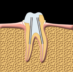 The tooth is prepared for a crown.  Posts are used to help support the crown.