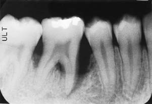 Caries Periapical Ray Of Teeth