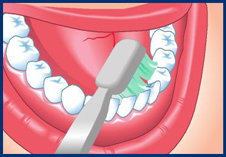 Clean every surface of every tooth. This means you must brush the cheek side, the tongue side and the top of each tooth