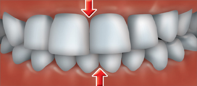 A crossbite occurs when one or more of your upper teeth don't line up with the appropriate lower tooth or teeth