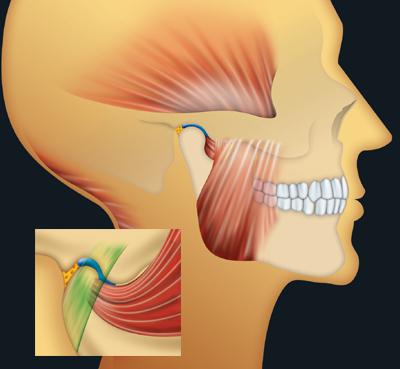 Le massage à de poitrine osteokhondroze jutoub