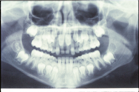 x-ray orthodontist 63141